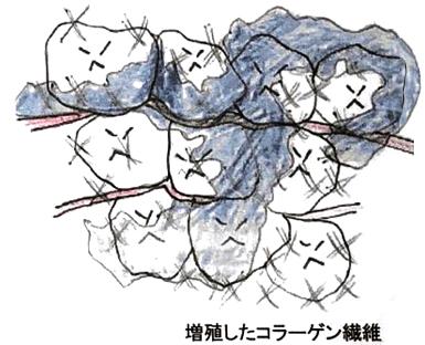 増殖したコラーゲン組織